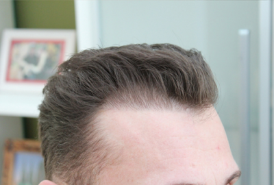 Monaten haartransplantation nach 4 Haartransplantation 4